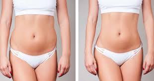 Yağ Aldırma (Liposuction)47