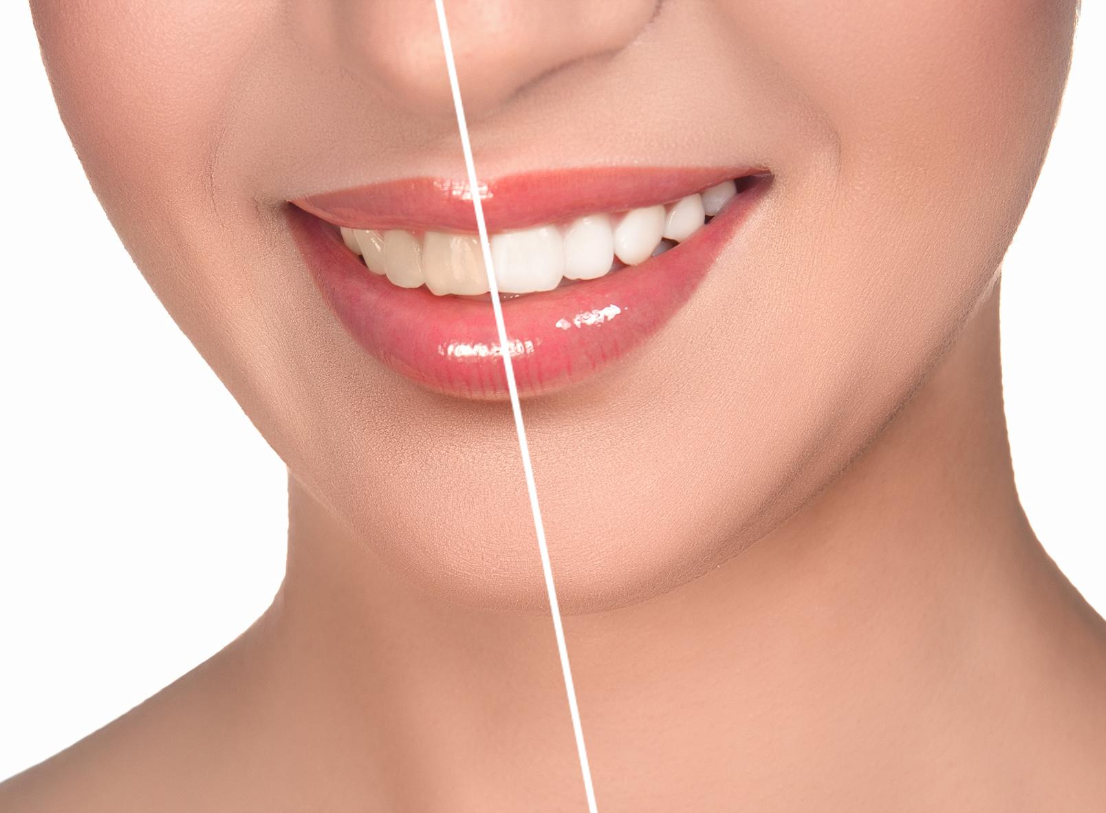 Teeth-Whitening 2